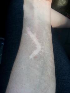 Las cicatrices no tienen polvo